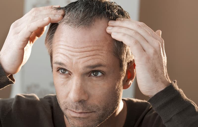 How Long A Hair Transplant Procedure Last